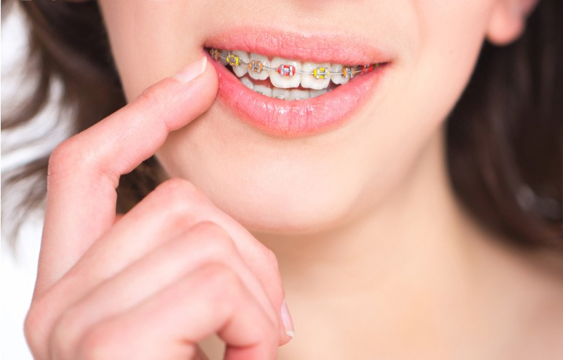 Match-Your-Braces-Color-to-Your-Personality